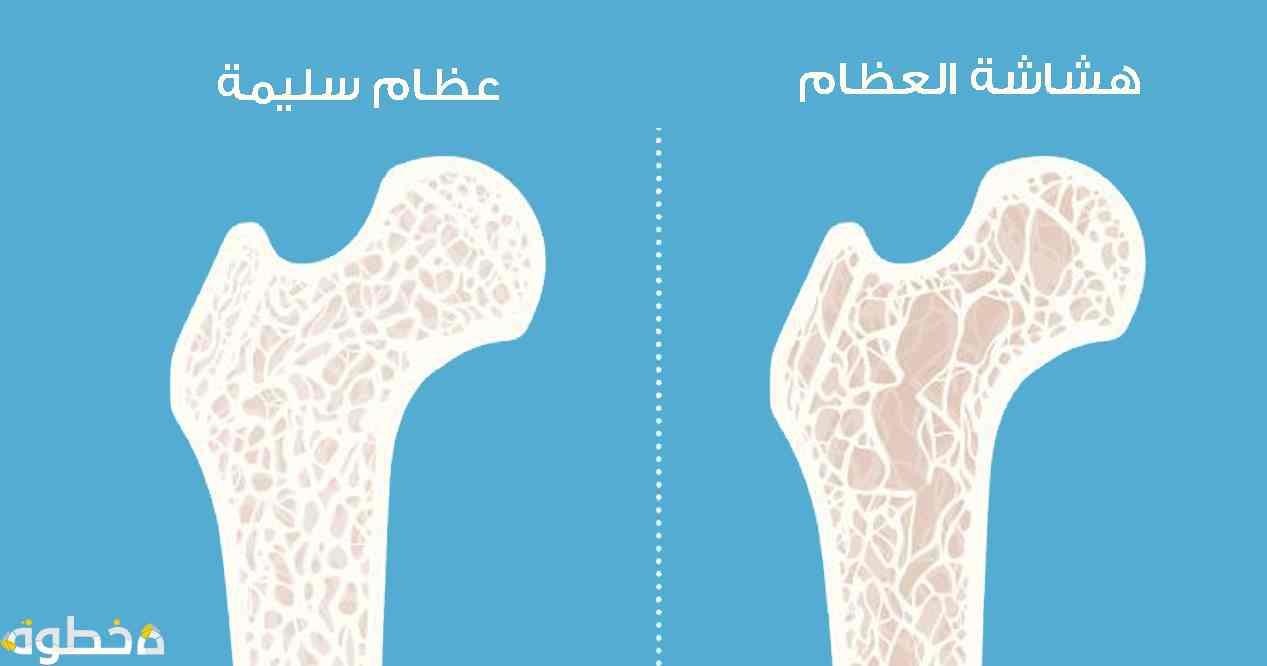 أسباب وعوامل الإصابة بهشاشة العظام