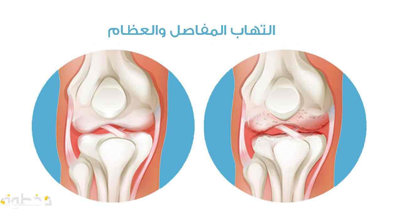 أسباب الإصابة بالتهاب المفاصل والعظام