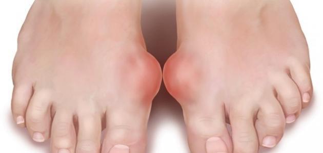 النقرس : تعرف على اسباب و اعراض الاصابة بمرض النقرس