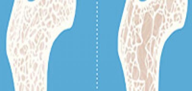 مرض هشاشة العظام وكيفية الوقاية منه