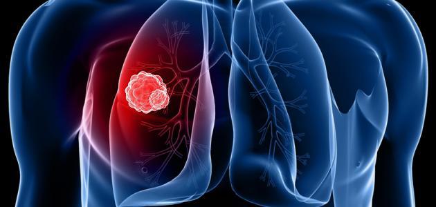 سرطان الرئة :ما هي أسبابه وأعراضه وطرق علاجه وأهمية كل طريقة ومدى تأثيرها