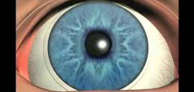 عملية زراعة العدسات اللاصقةداخل العين