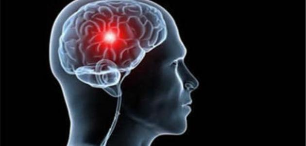 الجلطة الدماغية: آثارها وطرق علاجها