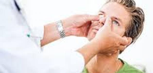 التهابات الجيوب الأنفية : أنواعها وأسبابها وأعراضها وطرق علاجها