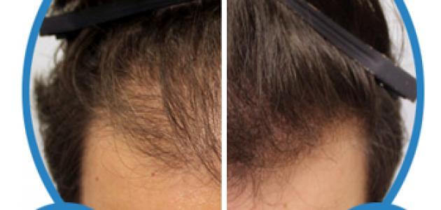 طريقة لعلاج تساقط الشعر بوصفة سريعة ومجربة