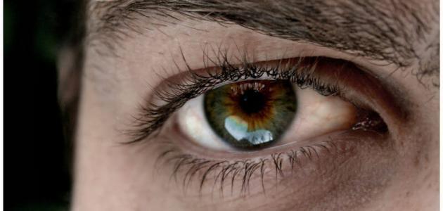 الهالات السوداء التى تظهر تحت العين